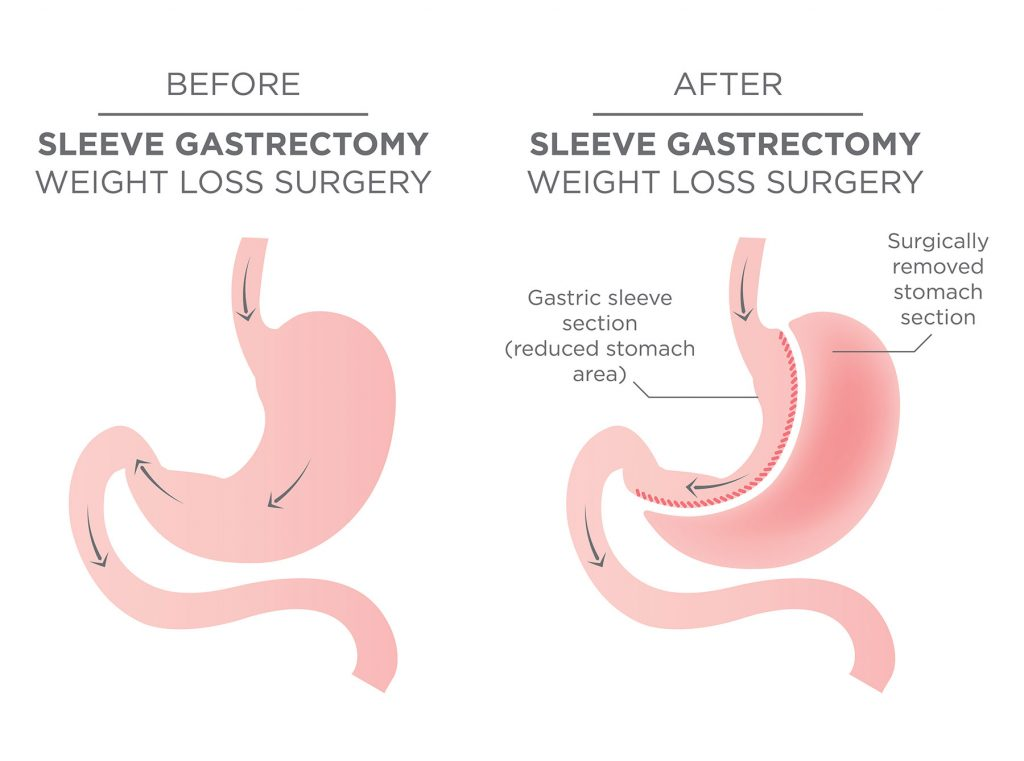 Bariatric Surgery Stomach Staple